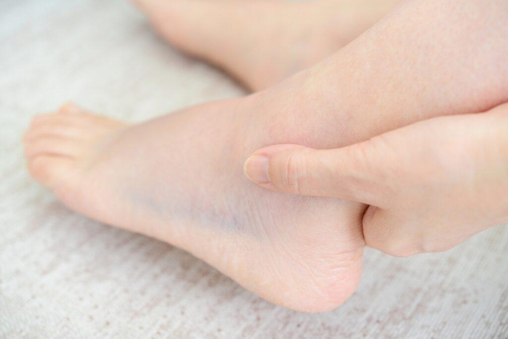 スポーツでの怪我による当院の治療